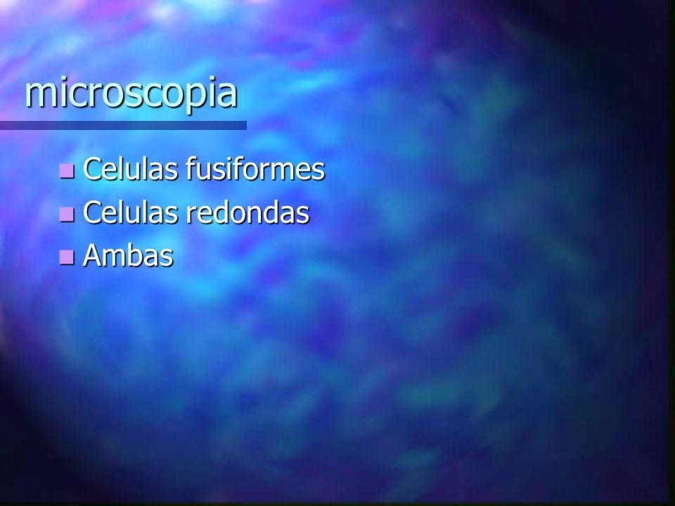 microscopia Celulas fusiformes Celulas redondas Ambas