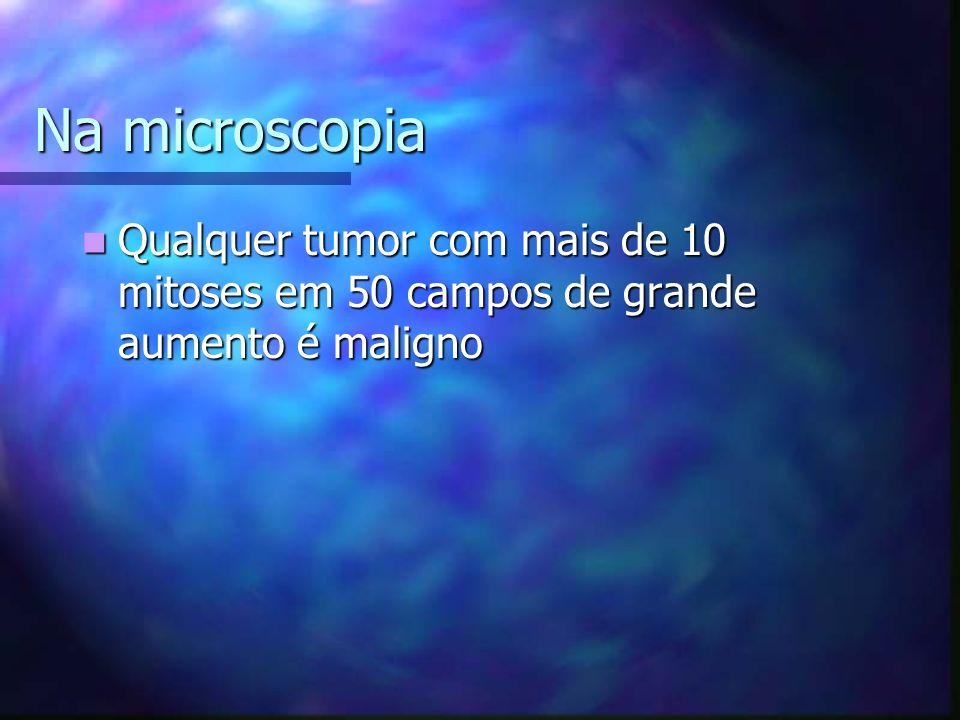Na microscopia Qualquer tumor com mais de 10 mitoses em 50 campos de grande aumento é maligno