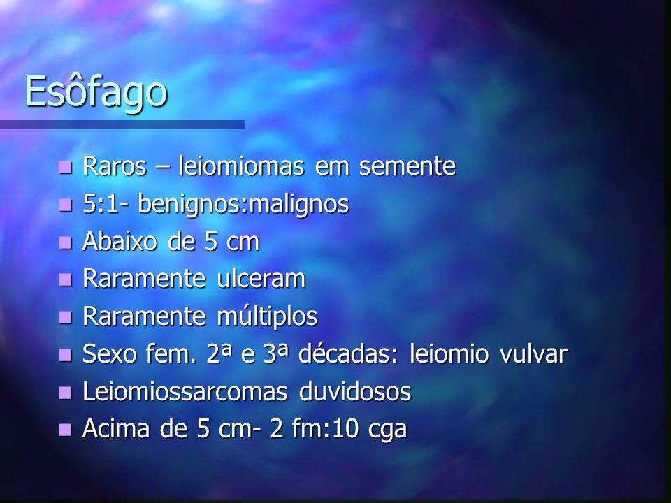Esôfago Raros – leiomiomas em semente 5:1- benignos:malignos