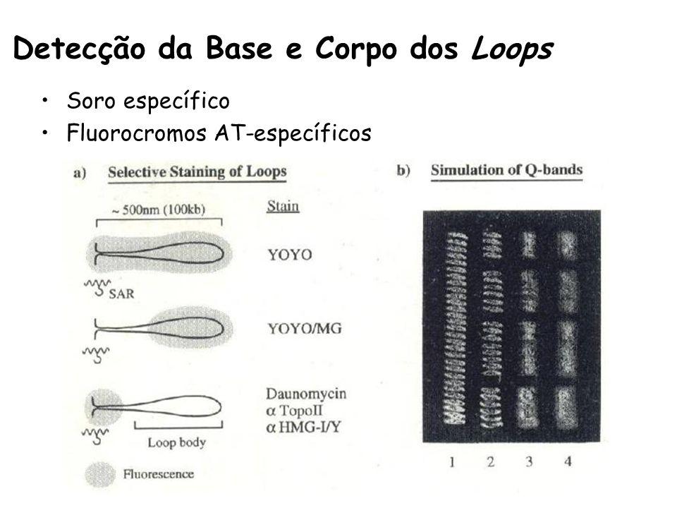 Detecção da Base e Corpo dos Loops