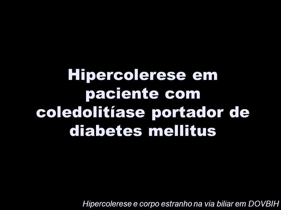 Hipercolerese em paciente com coledolitíase portador de diabetes mellitus