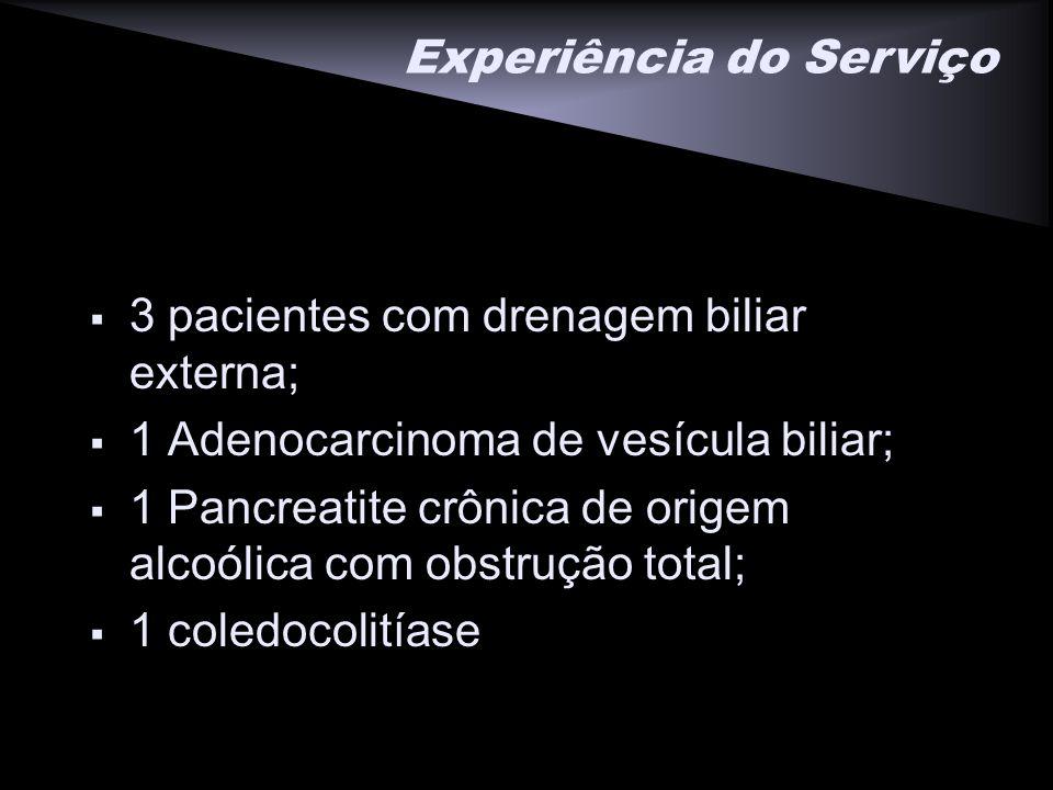 Experiência do Serviço