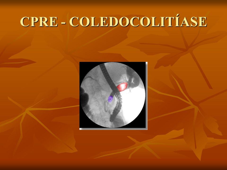CPRE - COLEDOCOLITÍASE