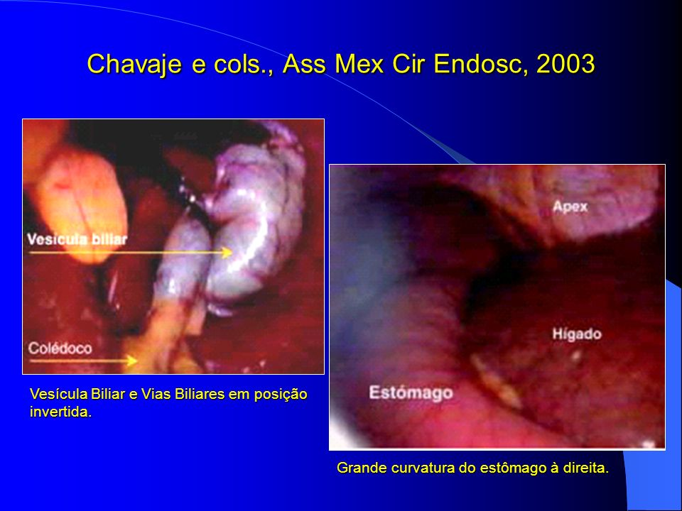 Chavaje e cols., Ass Mex Cir Endosc, 2003