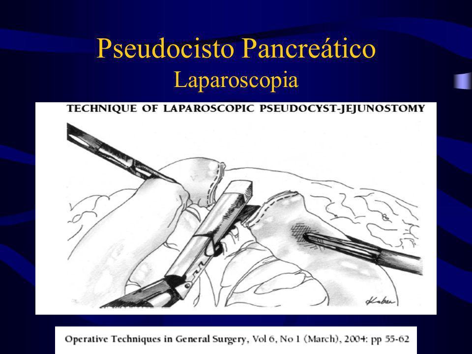 Pseudocisto Pancreático Laparoscopia