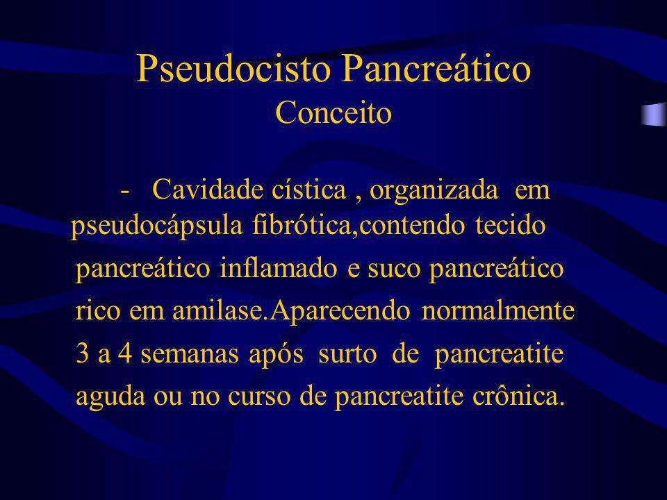 Pseudocisto Pancreático Conceito