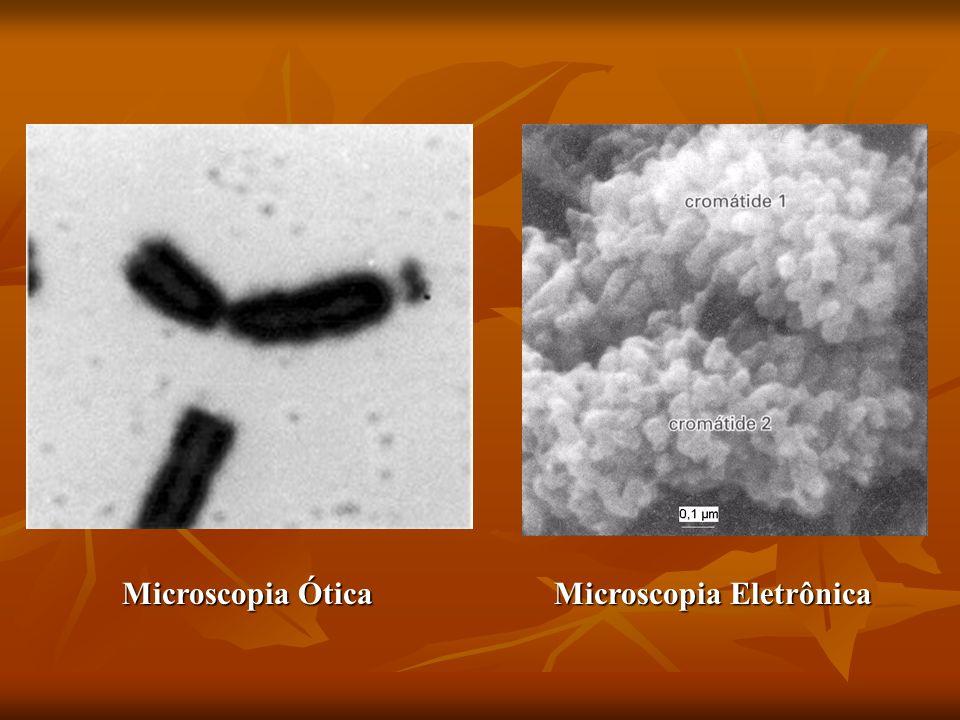 Microscopia Ótica Microscopia Eletrônica