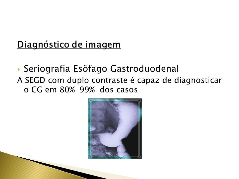 Seriografia Esôfago Gastroduodenal