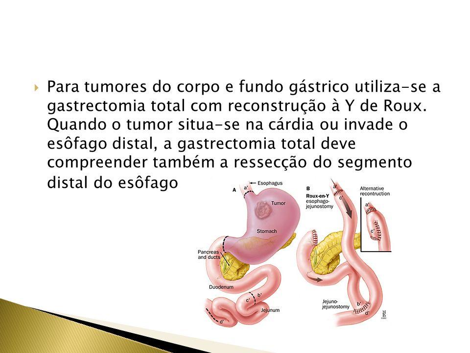 Para tumores do corpo e fundo gástrico utiliza-se a gastrectomia total com reconstrução à Y de Roux.