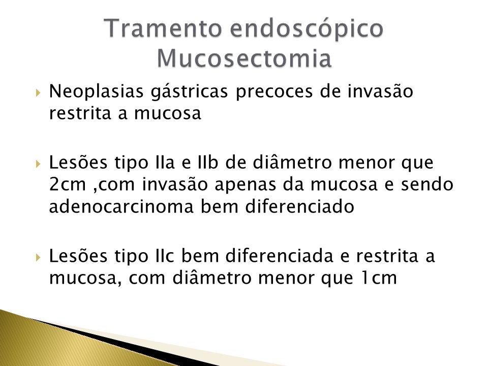 Tramento endoscópico Mucosectomia