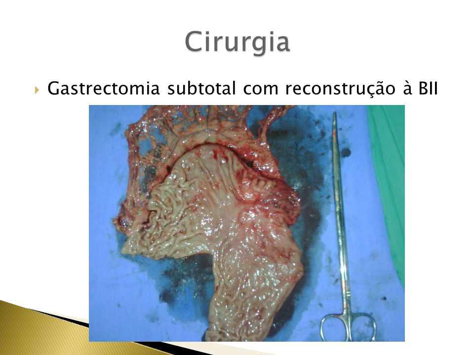 Cirurgia Gastrectomia subtotal com reconstrução à BII