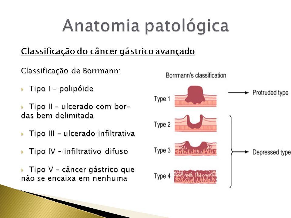 Anatomia patológica Classificação do câncer gástrico avançado