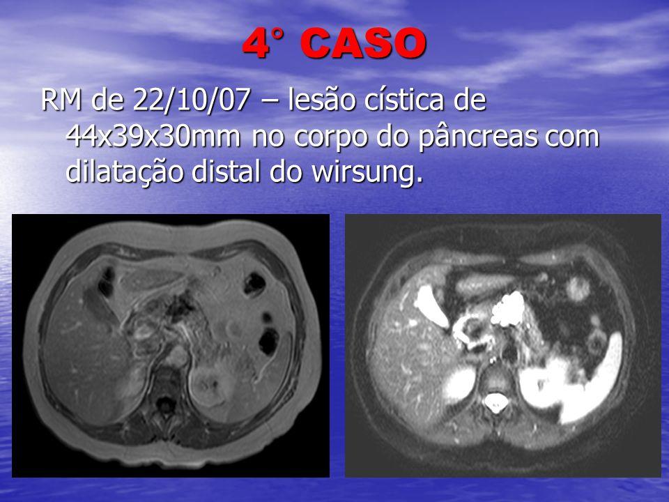 4° CASO RM de 22/10/07 – lesão cística de 44x39x30mm no corpo do pâncreas com dilatação distal do wirsung.