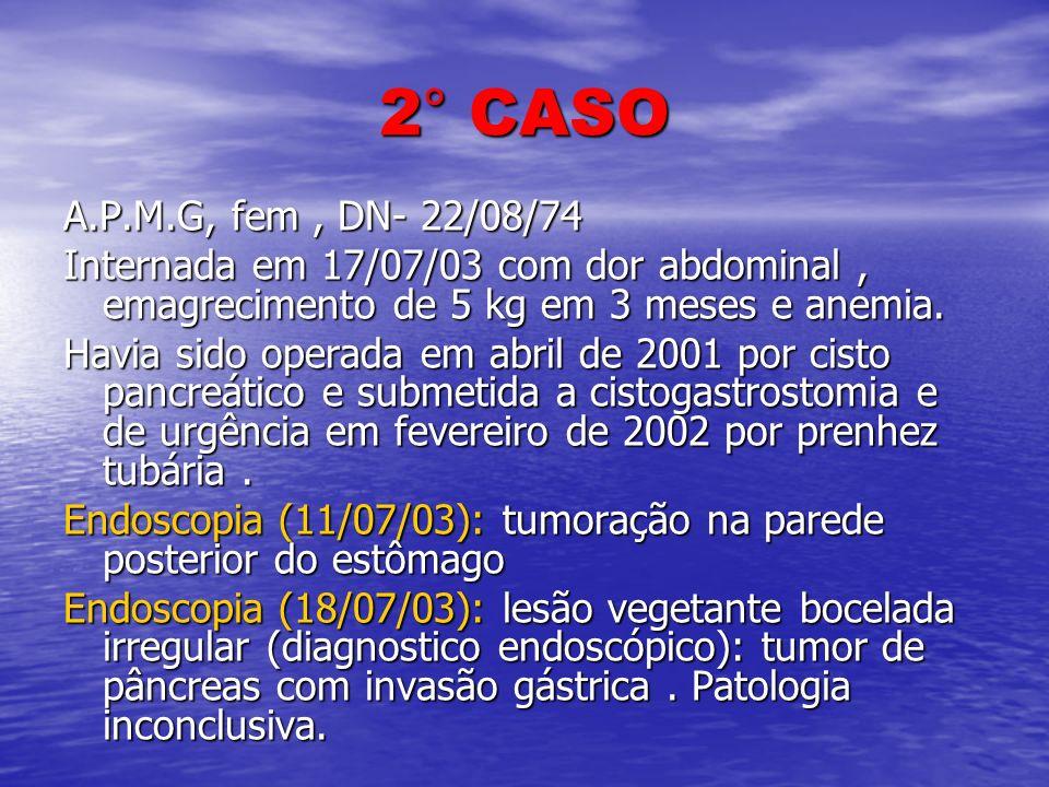 2° CASO A.P.M.G, fem , DN- 22/08/74. Internada em 17/07/03 com dor abdominal , emagrecimento de 5 kg em 3 meses e anemia.