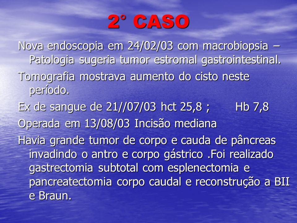 2° CASO Nova endoscopia em 24/02/03 com macrobiopsia – Patologia sugeria tumor estromal gastrointestinal.