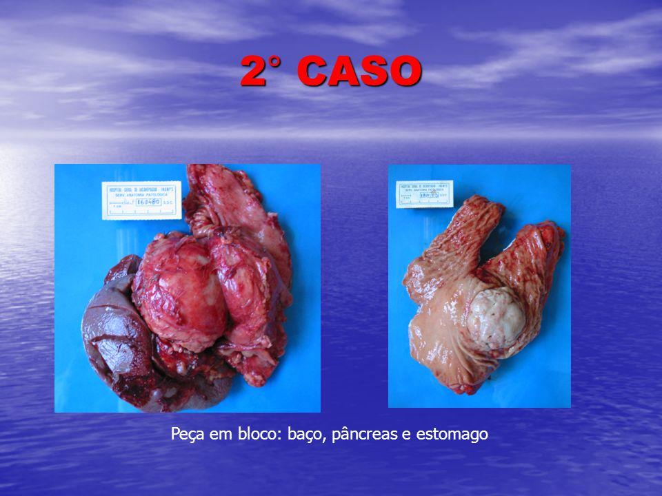 Peça em bloco: baço, pâncreas e estomago