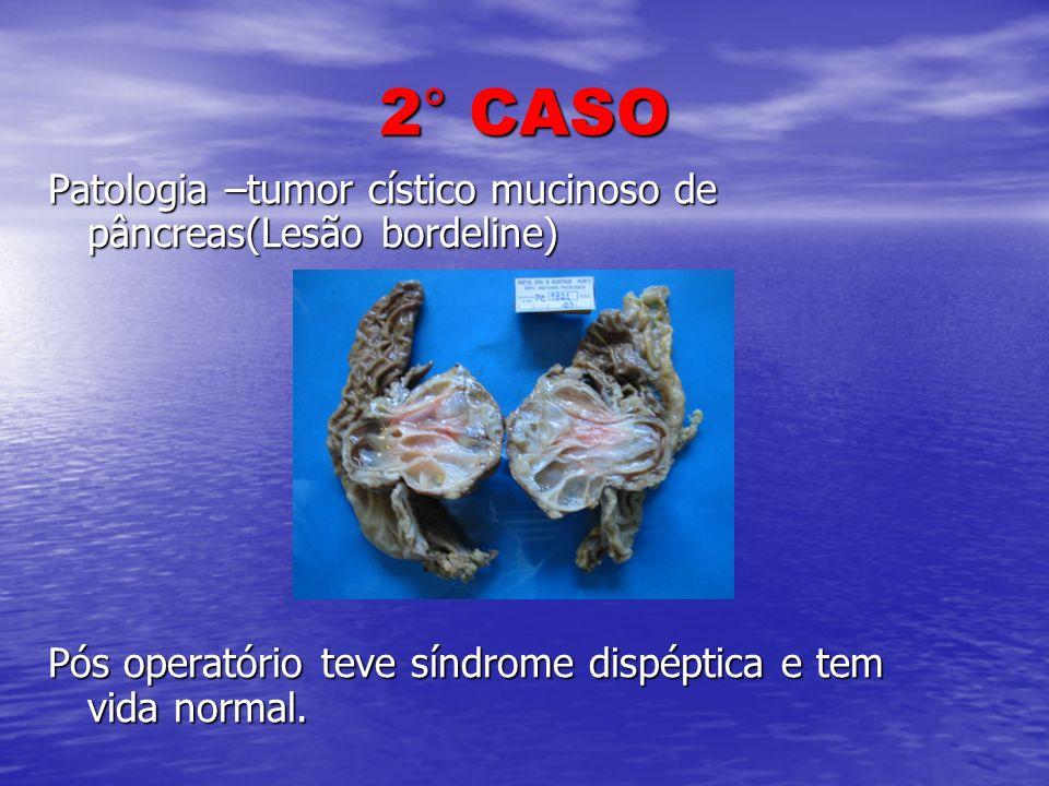 2° CASO Patologia –tumor cístico mucinoso de pâncreas(Lesão bordeline)