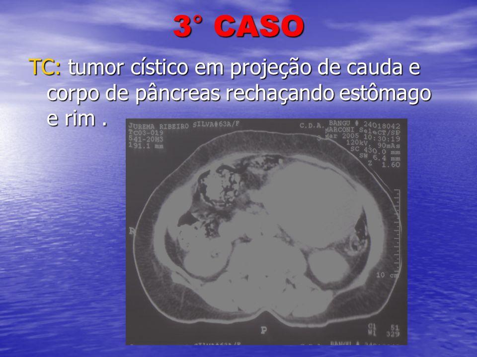 3° CASO TC: tumor cístico em projeção de cauda e corpo de pâncreas rechaçando estômago e rim .