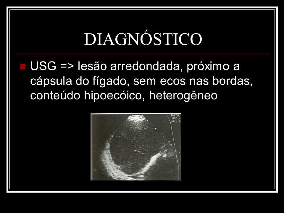 DIAGNÓSTICO USG => lesão arredondada, próximo a cápsula do fígado, sem ecos nas bordas, conteúdo hipoecóico, heterogêneo.