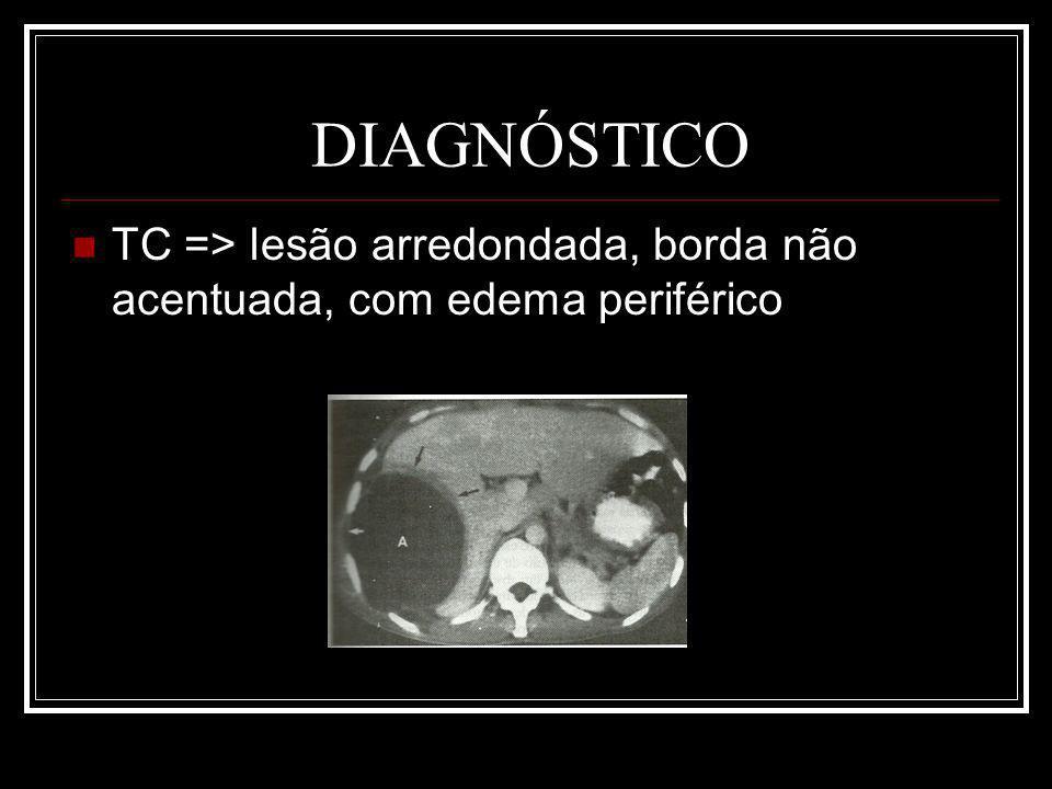 DIAGNÓSTICO TC => lesão arredondada, borda não acentuada, com edema periférico