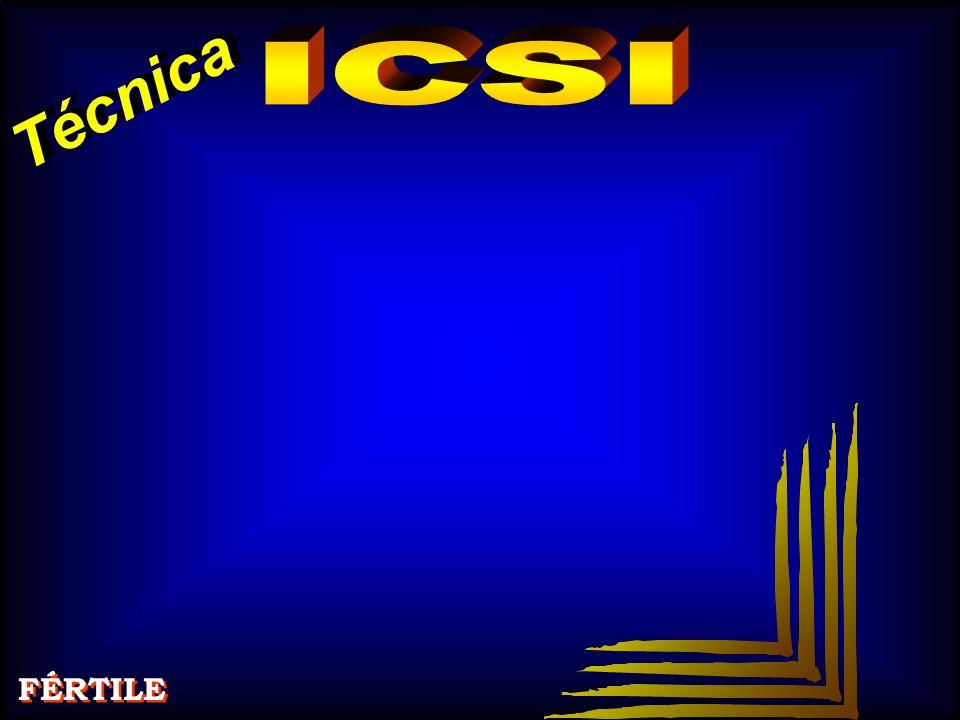 Técnica ICSI FÉRTILE