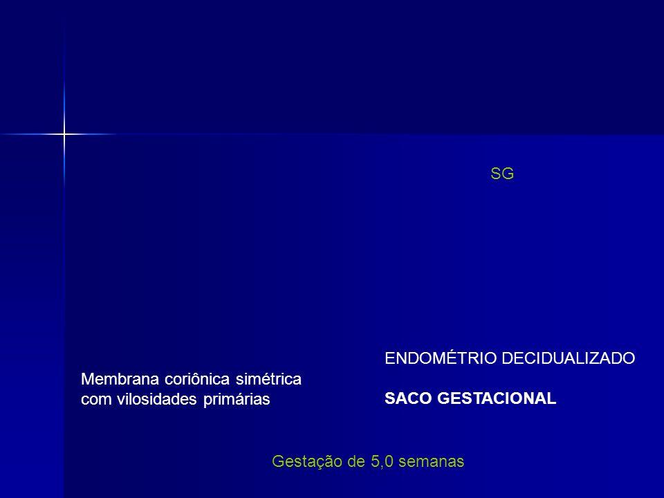 SG ENDOMÉTRIO DECIDUALIZADO. SACO GESTACIONAL. Membrana coriônica simétrica. com vilosidades primárias.