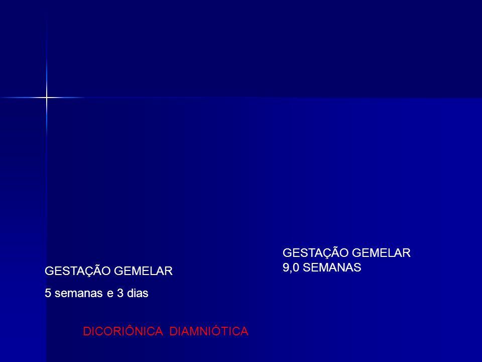 GESTAÇÃO GEMELAR 9,0 SEMANAS GESTAÇÃO GEMELAR 5 semanas e 3 dias DICORIÔNICA DIAMNIÓTICA