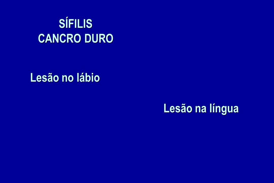 SÍFILIS CANCRO DURO Lesão no lábio Lesão na língua