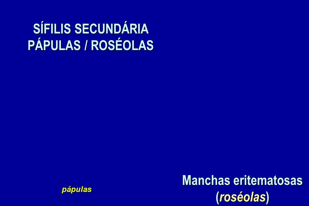SÍFILIS SECUNDÁRIA PÁPULAS / ROSÉOLAS Manchas eritematosas (roséolas)
