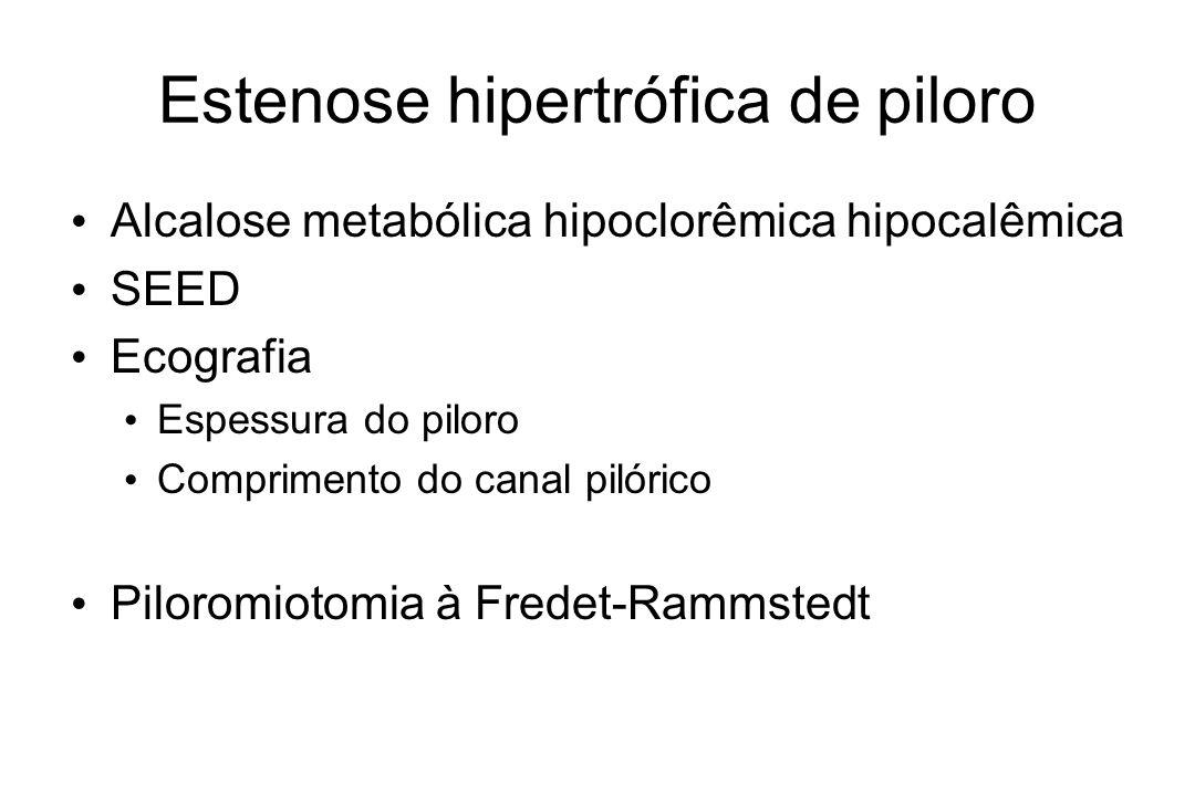 Estenose hipertrófica de piloro