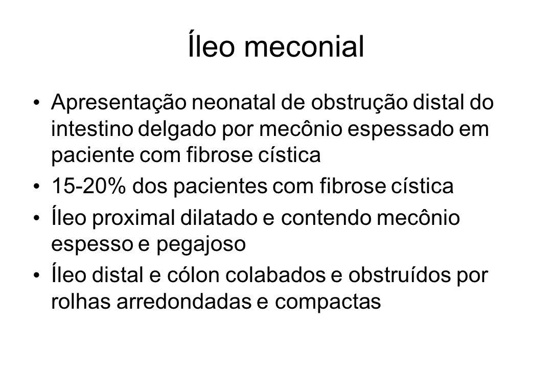 Íleo meconial Apresentação neonatal de obstrução distal do intestino delgado por mecônio espessado em paciente com fibrose cística.