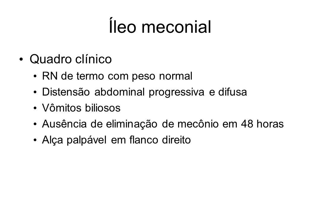 Íleo meconial Quadro clínico RN de termo com peso normal