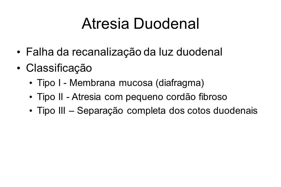 Atresia Duodenal Falha da recanalização da luz duodenal Classificação