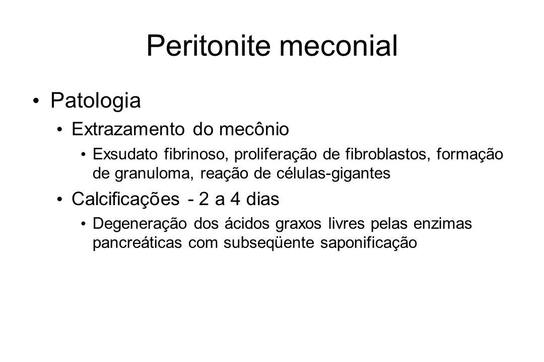 Peritonite meconial Patologia Extrazamento do mecônio