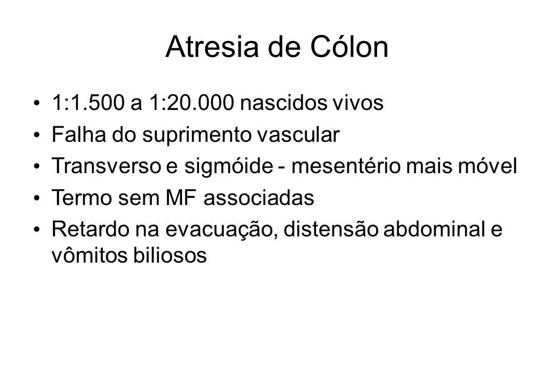 Atresia de Cólon 1:1.500 a 1:20.000 nascidos vivos