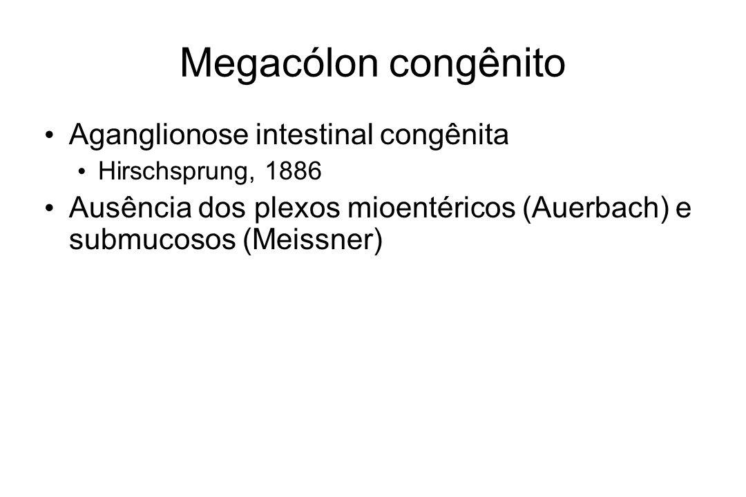Megacólon congênito Aganglionose intestinal congênita