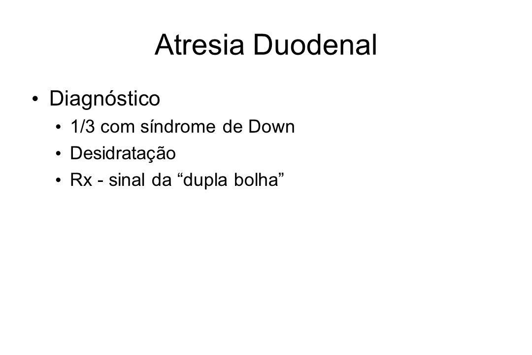 Atresia Duodenal Diagnóstico 1/3 com síndrome de Down Desidratação
