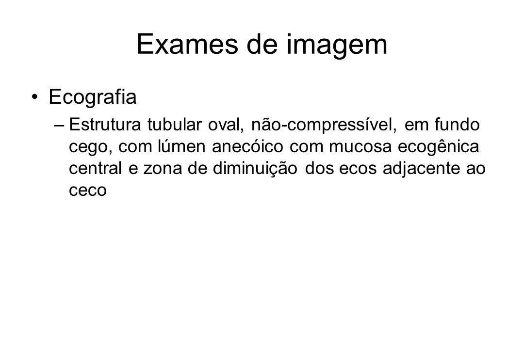 Exames de imagem Ecografia