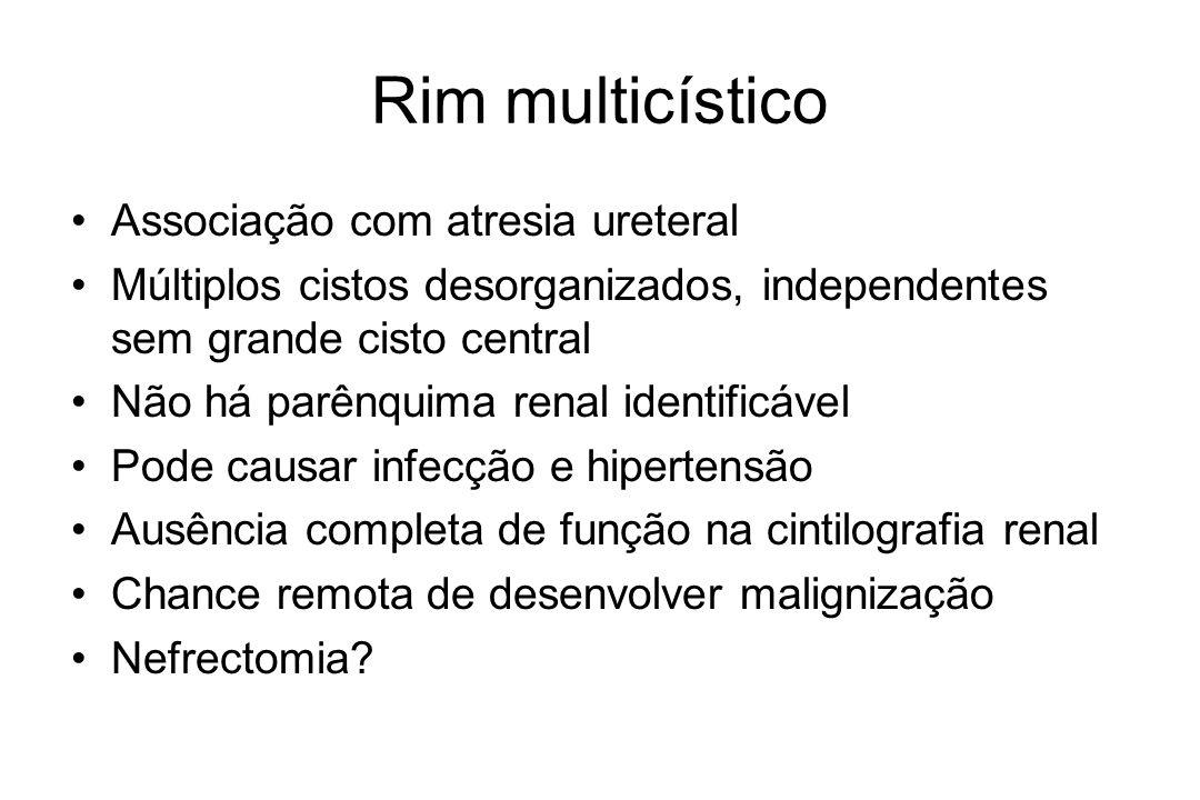 Rim multicístico Associação com atresia ureteral