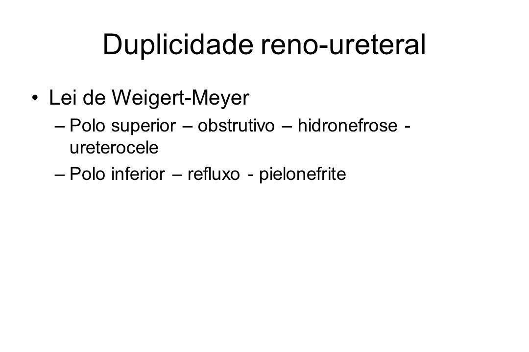 Duplicidade reno-ureteral