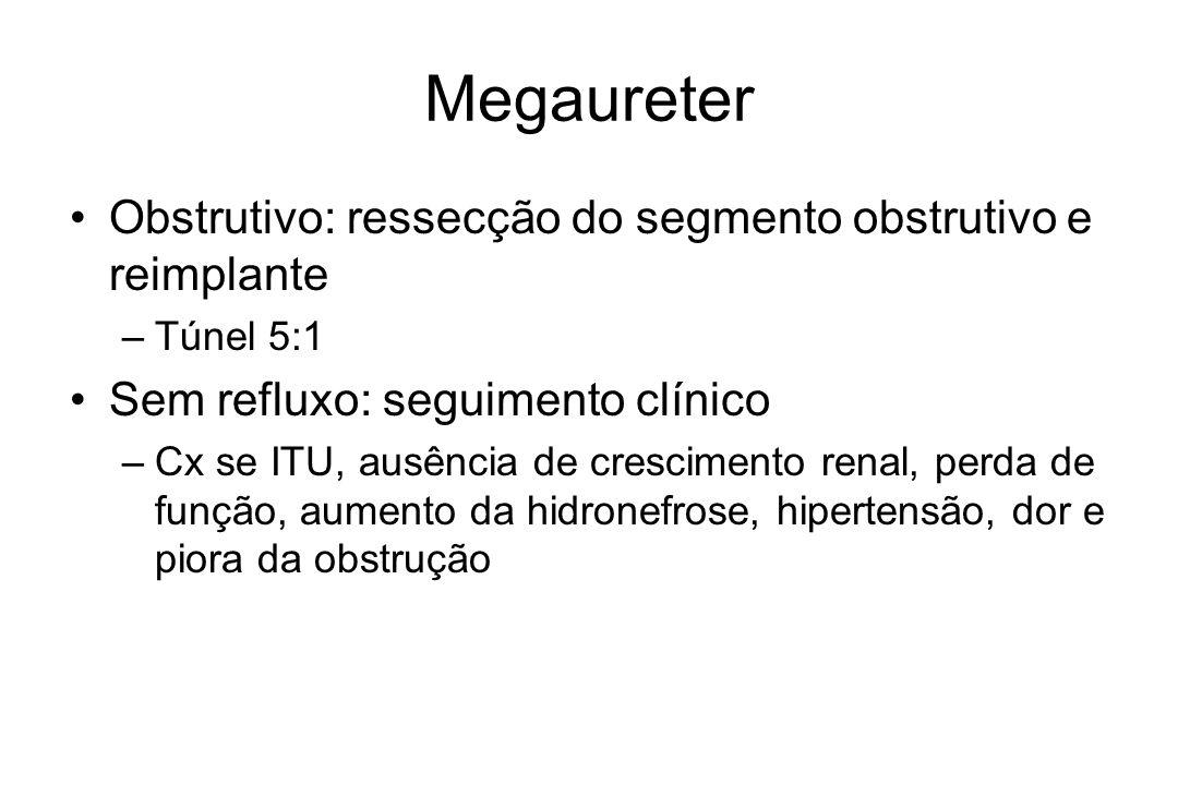 Megaureter Obstrutivo: ressecção do segmento obstrutivo e reimplante