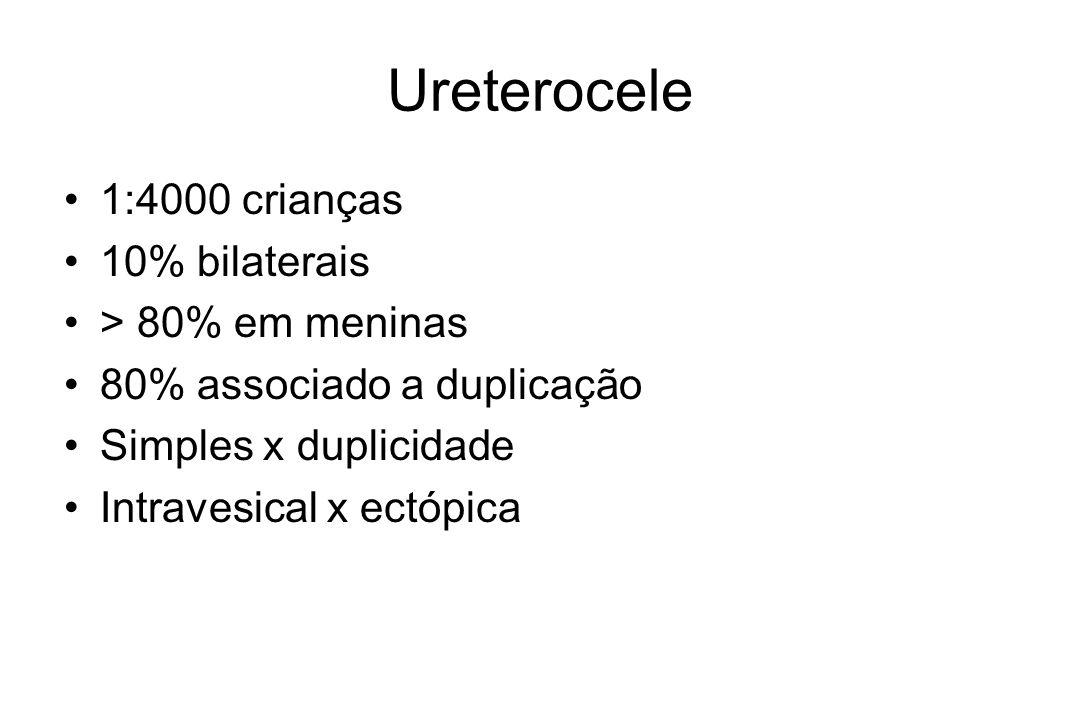 Ureterocele 1:4000 crianças 10% bilaterais > 80% em meninas