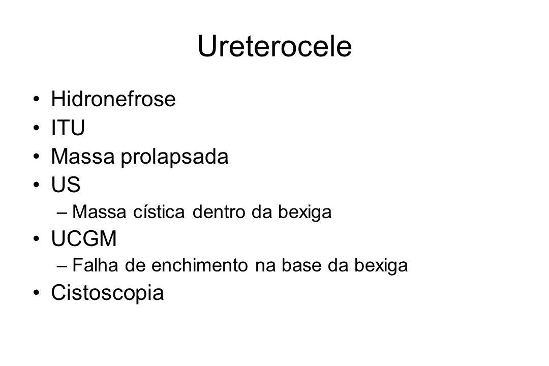 Ureterocele Hidronefrose ITU Massa prolapsada US UCGM Cistoscopia