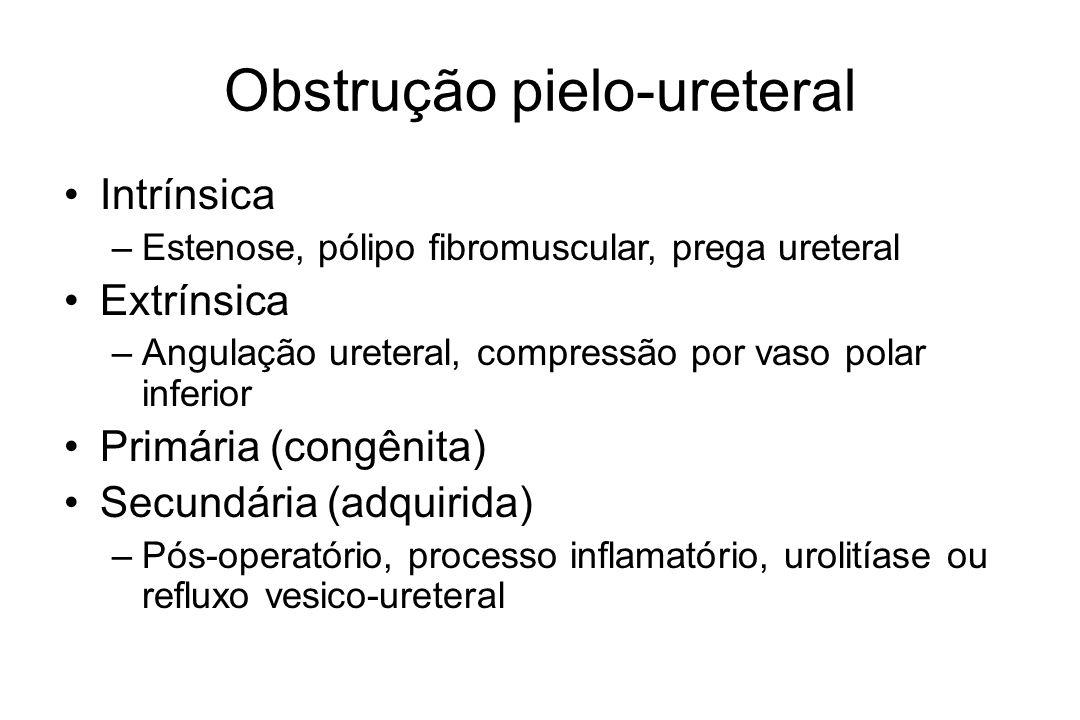 Obstrução pielo-ureteral