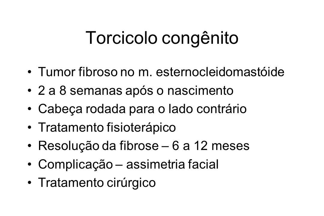 Torcicolo congênito Tumor fibroso no m. esternocleidomastóide