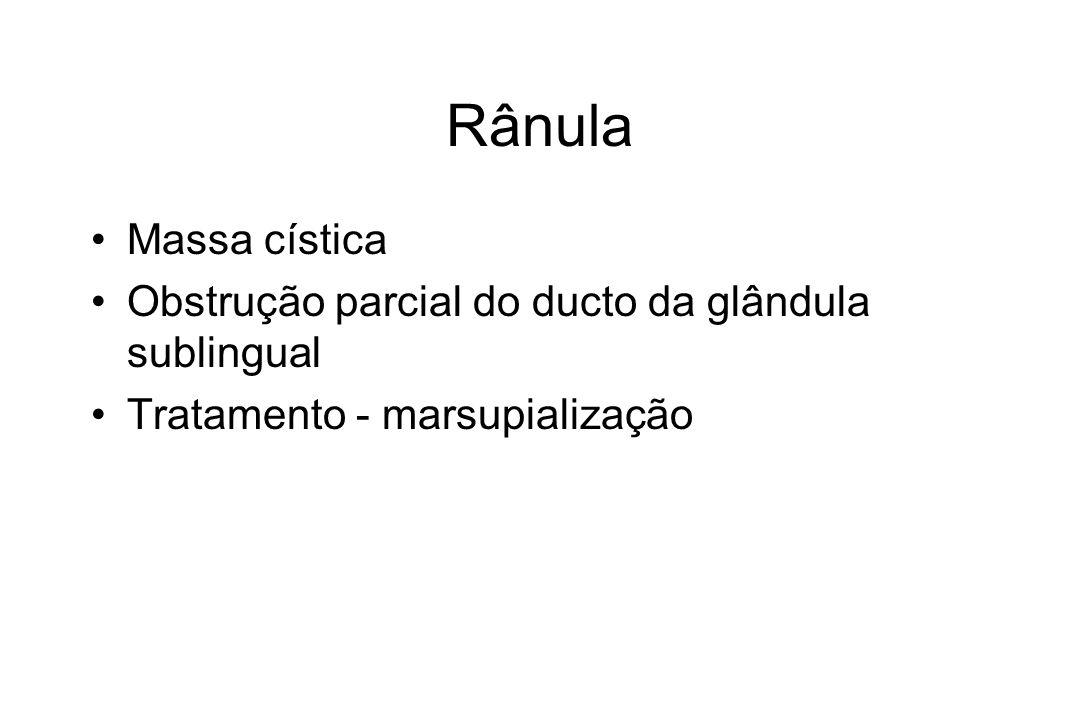 Rânula Massa cística Obstrução parcial do ducto da glândula sublingual