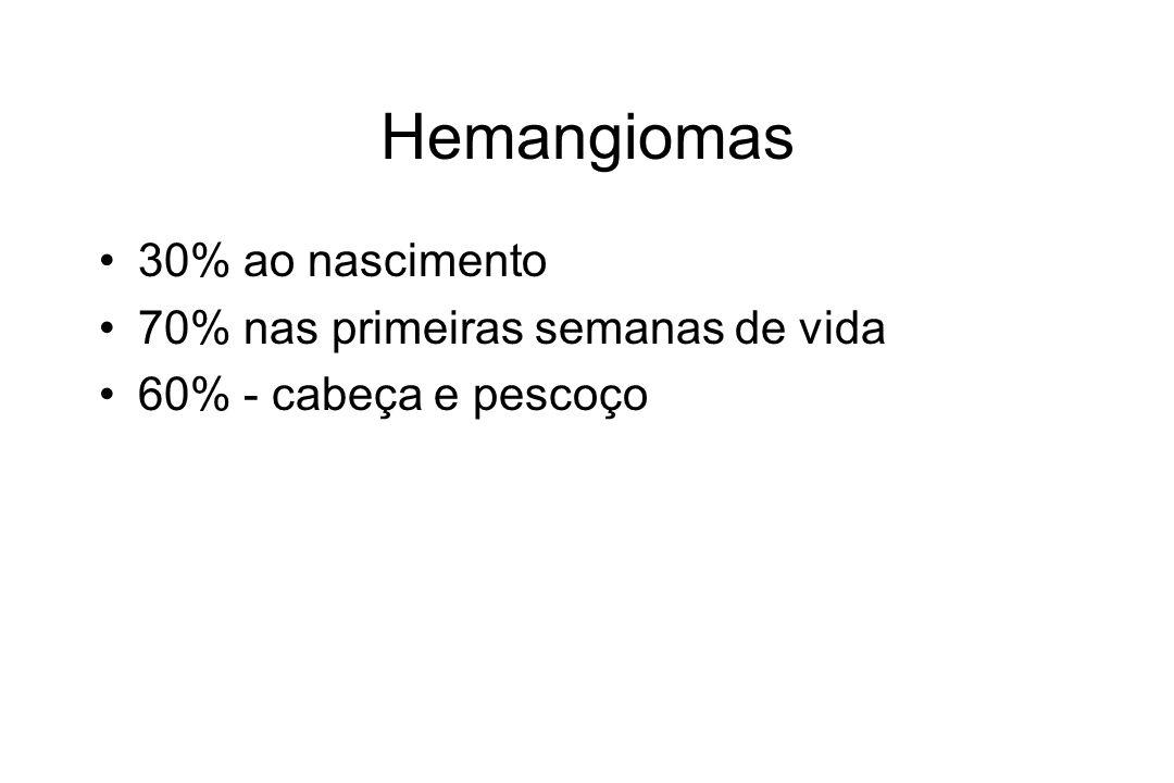 Hemangiomas 30% ao nascimento 70% nas primeiras semanas de vida