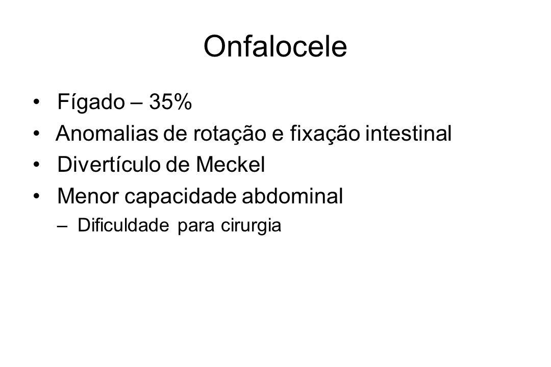 Onfalocele Fígado – 35% Anomalias de rotação e fixação intestinal
