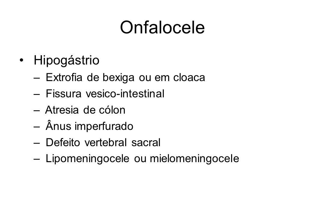 Onfalocele Hipogástrio Extrofia de bexiga ou em cloaca