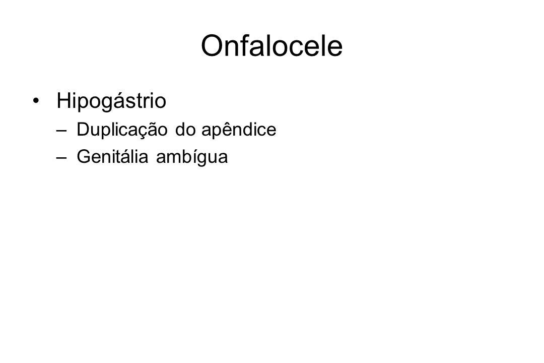 Onfalocele Hipogástrio Duplicação do apêndice Genitália ambígua